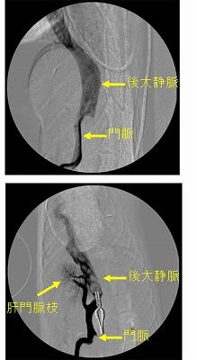 p15 門脈シャント図8